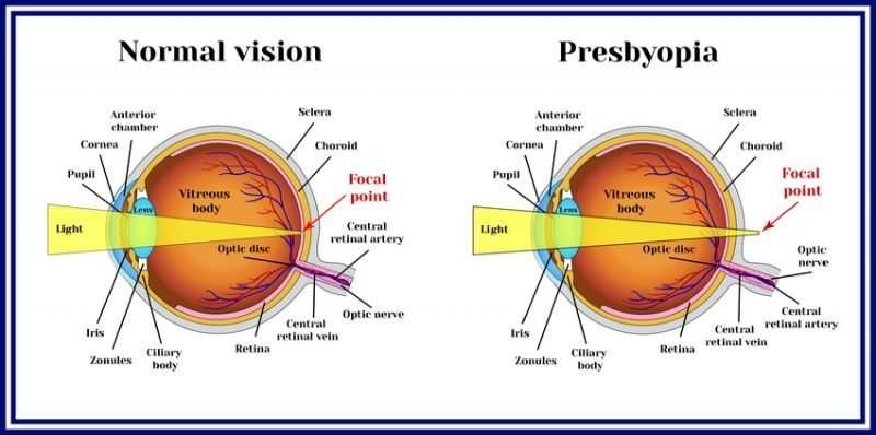 varifocal contact lenses for presbyopia